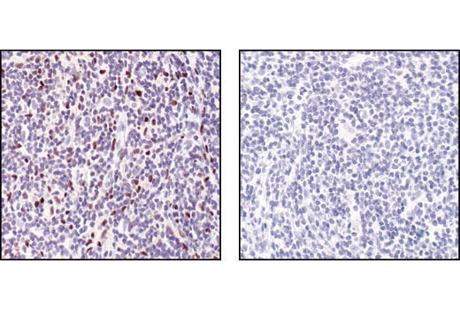 Immunohistochemical analysis of paraffin-embedded Non-Hodgkin's lymphoma using PU.1 (9G7) Rabbit mAb in the presence of control peptide (left) or PU.1 Blocking Peptide #1036 (right).