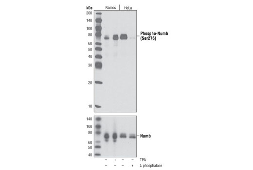 Western blot analysis of extracts from Ramos and HeLa cells, untreated or treated with TPA (Phorbol-12-Myristate-13-Acetate, 200 nM for 30 min) or λ-phosphatase, using Phospho-Numb (Ser276) Antibody (upper) or Numb (C29G11) Rabbit mAb #2756 (lower).