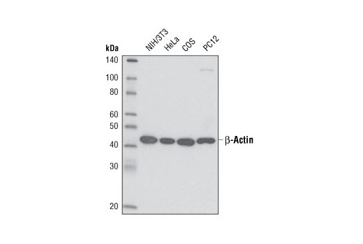 Western blot analysis of extracts from various cell lines using β-Actin (13E5) Rabbit mAb (HRP Conjugate).
