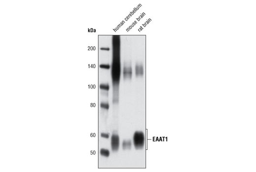 Western blot analysis of extracts from human cerebellum, mouse and rat brain using EAAT1 Antibody.