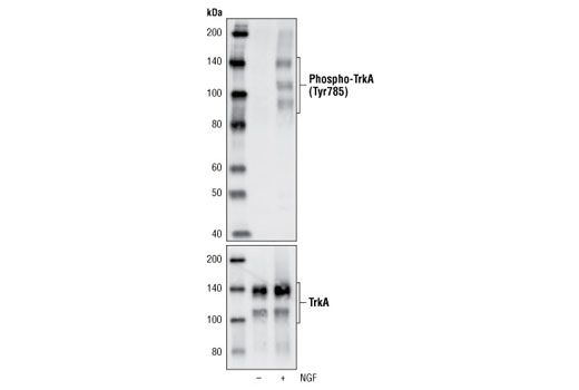 Western blot analysis of extracts from NIH/3T3 cells transfected with TrkA, untreated or treated with NGF, using Phospho-TrkA (Tyr785)/TrkB (Tyr816) (C67C8) Rabbit mAb (upper) and TrkA (14G6) Rabbit mAb #2508 (lower).