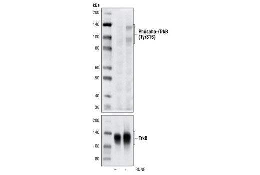 Western blot analysis of extracts from NIH/3T3 cells transfected with TrkB, untreated or treated with hBDNF #3897, using Phospho-TrkA (Tyr785)/TrkB (Tyr816) (C67C8) Rabbit mAb (upper) and Trk (pan) (C17F1) Rabbit mAb #4609 (lower).