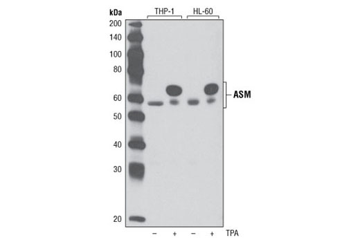 Western blot analysis of extracts from THP-1 and HL-60 cells, untreated (-) or treated overnight with TPA #9905 (+), using ASM Antibody.