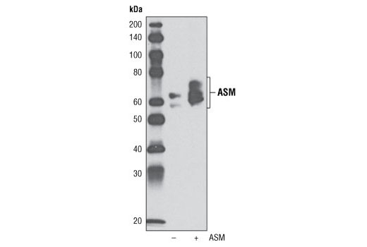 Western blot analysis of extracts from COS-7 cells, untransfected (-) or transfected with a human ASM construct (+), using ASM Antibody.