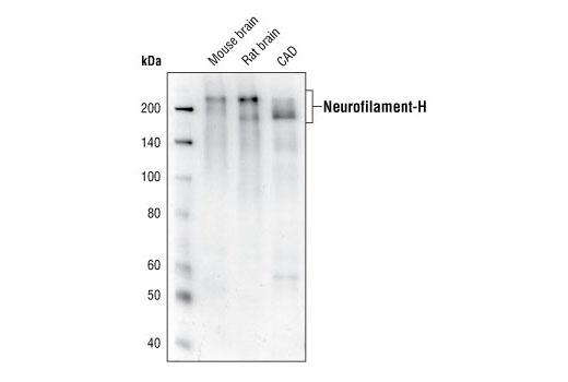 Western blot analysis of extracts from mouse brain, rat brain or CAD cells, using Neurofilament-H (RMdO 20) Mouse mAb.