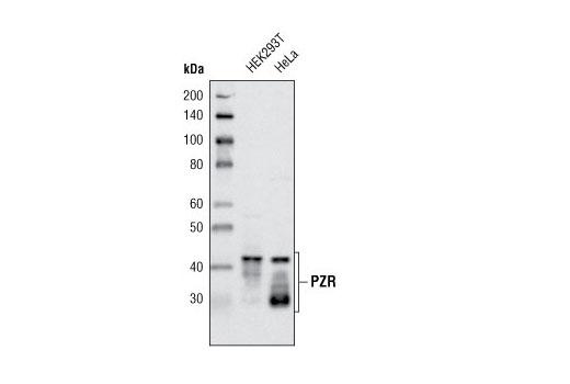 Polyclonal Antibody - PZR Antibody - Immunoprecipitation, Western Blotting, UniProt ID O95297, Entrez ID 9019 #4157