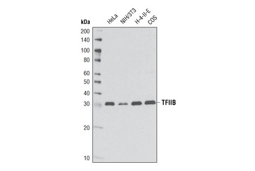Western blot analysis of extracts from various cell lines using TFIIB (2F6A3H4) Mouse mAb.