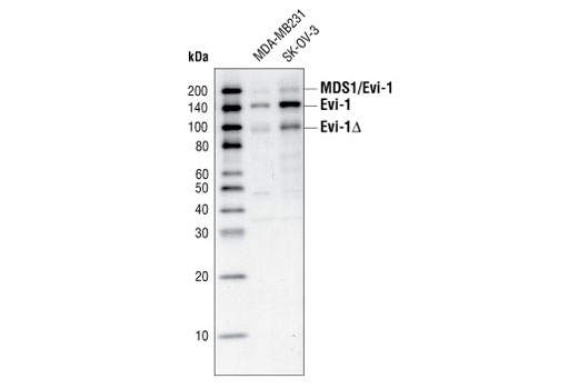 Western blot analysis of total cell extracts from MDA-MB231 and SK-OV-3 cells, using Evi-1 antibody. MDS/Evi-1 denotes the fusion between MDS1 and Evi-1 (see reference #6) and Evi-1 delta denotes the truncated form of Evi-1 (see reference #5).