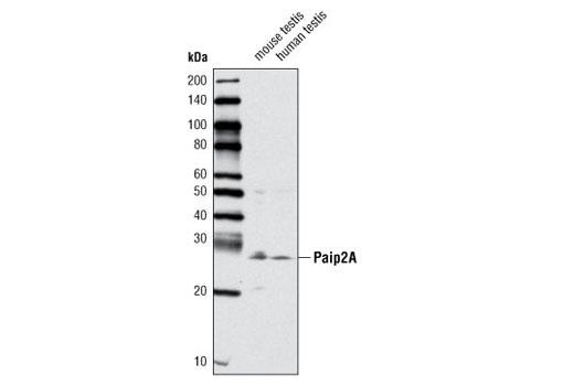 Polyclonal Antibody - Paip2A Antibody - Western Blotting, UniProt ID Q9BPZ3, Entrez ID 51247 #4422, Protein Translation