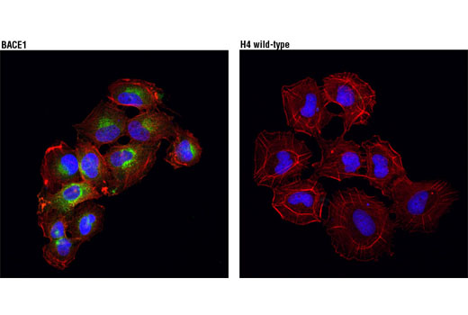 Monoclonal Antibody Immunofluorescence Frozen Aspartic-Type Endopeptidase Activity - count 2