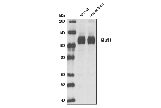 Western blot analysis of extracts from rat and mouse brain using NMDA Receptor1 (GluN1) (D65B7) Rabbit mAb.