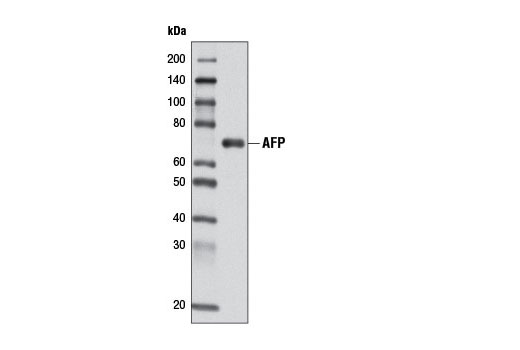 Western blot analysis of extracts from Hep G2 cells using AFP (D12C1) Rabbit mAb.