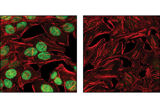 Confocal immunofluorescent analysis of HeLa cells, mock-transfected (left) or transfected with SignalSilence<sup>®</sup> c-Myc siRNA I #6341 (right), using c-Myc (D84C12) Rabbit mAb (green). Actin filaments have been labeled wth DY-554 phalloidin (red).