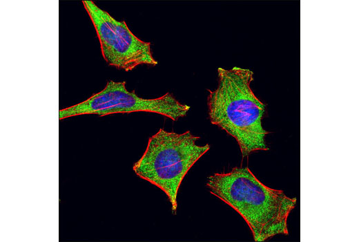 Confocal immunofluorescent analysis of HeLa cells using YB1 (D299) Antibody (green). Actin filaments were labeled using DY-554 phalloidin (red). Blue pseudocolor = DRAQ5<sup>®</sup> #4084 (fluorescent DNA dye).
