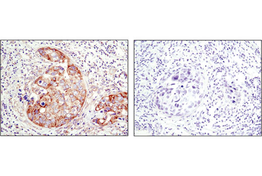 Immunohistochemical analysis of paraffin-embedded human breast carcinoma using YB1 (D299) Antibody in the presence of control peptide (left) or antigen-specific peptide (right).