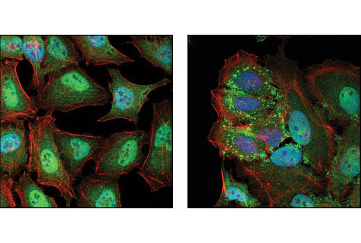 Confocal immunofluorescent analysis of HeLa cells, untreated (left) or UV-treated (right), using TIAR Antibody (green). Actin filaments have been labeled with DY-554 phalloidin (red). Blue pseudocolor = DRAQ5<sup>®</sup> #4084 (fluorescent DNA dye).