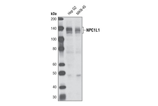 Western blot analysis of extracts from Hep G2 and MKN-45 cells using NPC1L1 Antibody.