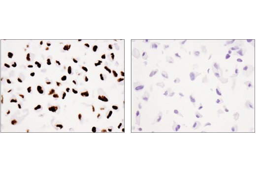 Immunohistochemical analysis of paraffin-embedded 786-O cell pellet (left, positive) or A498 cell pellet (right, negative) using Tri-Methyl-Histone H3(K36) (D5A7) XP(R) Rabbit mAb. Note that the A498 cell line harbors a SETD2 mutation.