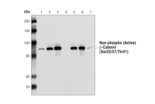Western blot analysis of total SW480 cell lysates using Non-phospho (Active) β-Catenin (Ser33/Ser37/Thr41) Antibody in the presence of a non-phospho-β-catenin peptide (Lane 4) and various peptides phosphorylated at different positions, including phospho-β-catenin (Ser33) peptide (Lane 1), phospho-β-catenin (Ser33/37) peptide (Lane 2), phospho-β-catenin (Ser33/37/Thr41) peptide (Lane 3), phospho-β-catenin (Ser37) peptide (Lane 5), phospho-β-catenin (Ser37/Thr41) peptide (Lane 6), and phospho-β-catenin (Thr41) peptide (Lane 7).