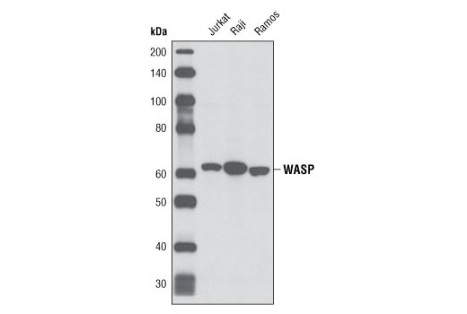 Western blot analysis of extracts from Jurkat, Raji and Ramos cells using WASP (D9C8) Rabbit mAb.