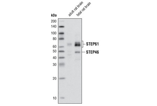 Western blot analysis of extracts from adult rat and fetal rat brain using STEP (23E5) Mouse mAb.