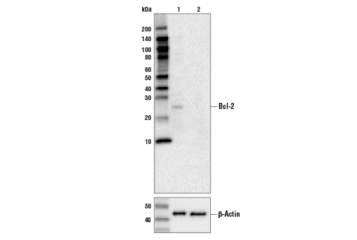 Western blot analysis of HeLa cell extracts, untreated (-) or Bcl-2 knock-out (+), using Bcl-2 (D55G8) Rabbit mAb #4223 (upper), or β-actin (13E5) Rabbit mAb #4970 (lower).