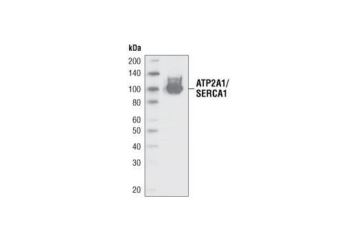 Polyclonal Antibody Regulation of Striated Muscle Contraction