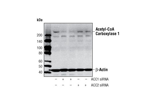Western blot analysis of extracts from HeLa cells, mock transfected or transfected with either SignalSilence<sup>®</sup> ACC1 siRNA or SignalSilence<sup>® </sup>ACC2 siRNA, using Acetyl-CoA Carboxylase 1 Antibody and β-Actin (13E5) Rabbit mAb #4970.