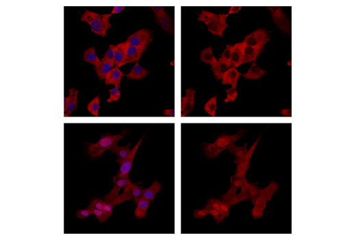 Confocal immunofluorescent analysis of HT-1080 cells treated with either U0126 (MEK1/2 Inhibitor) #9903 (top, left/right), or PDBu (Phorbol 12,13-Dibutyrate) #12808 (bottom, left/right) using p44/42 MAPK (Erk1/2) (137F5) (Alexa Fluor® 647 Conjugate) Rabbit mAb (red). Blue pseudocolor = Hoechst 33342 #4082.