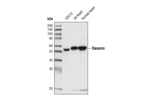 Western blot analysis of extracts from C2C12 cells, rat heart and human heart using Desmin (D93F5) XP<sup>®</sup> Rabbit mAb.