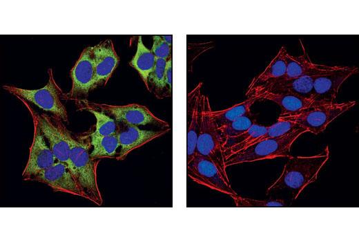 Polyclonal Antibody - eIF4G Antibody, UniProt ID Q04637, Entrez ID 1981 #2498 - #2498