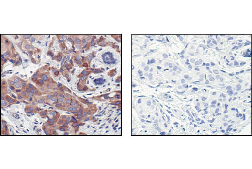 Immunohistochemical analysis of paraffin-embedded human breast carcinoma, using eIF4G Antibody in the presence of control peptide (left) or eIF4G blocking peptide #1003 (right).