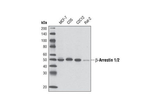 Western blot analysis of extracts from various cell lines using beta-Arrestin 1/2 (D24H9) Rabbit mAb.