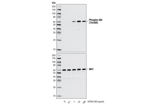 Western blot analysis of extracts from NIH/3T3 cells untreated or treated with hPDGF-BB for 10 minutes, using Phospho-Akt (Thr308) (C31E5E) Rabbit mAb #2965 (upper) and Akt1 (C73H10) Rabbit mAb #2938 (lower).