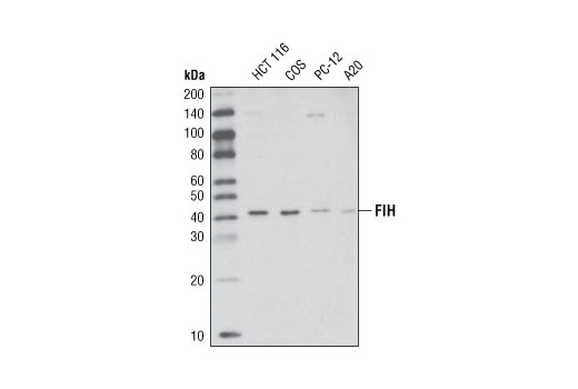 Western blot analysis of extracts from various cell types using FIH (D19B3) Rabbit mAb.