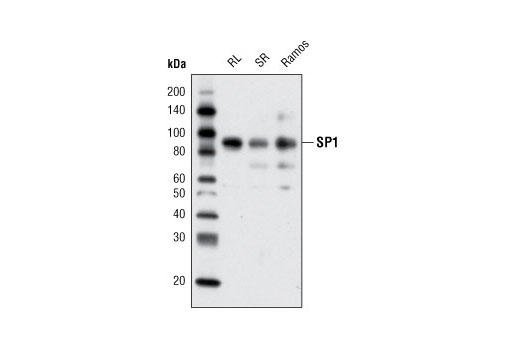 Western blot analysis of extracts from RL7, SR, and Ramos cells using SP1 Antibody.