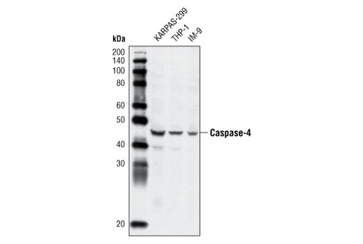 Western blot analysis of extracts from KARPAS-299, THP-1 and IM-9 cells using Caspase-4 Antibody.