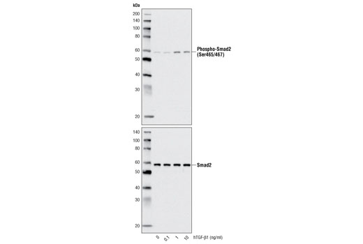 Western blot analysis of extracts from HeLa cells, untreated or treated with hTGF-β1 for 25 minutes, using Phospho-Smad2 (Ser465/467) (138D4) Rabbit mAb #3108 (upper) and Smad2 (86F7) Rabbit mAb #3122 (lower).