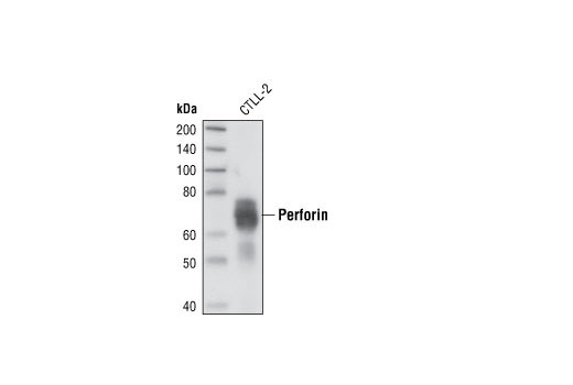 Polyclonal Antibody Immune Response to Tumor Cell - count 20