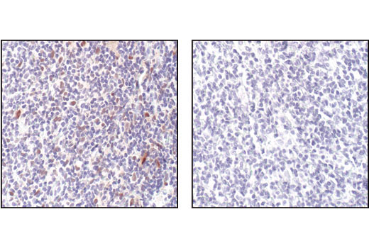 Immunohistochemical analysis of paraffin-embedded Non-Hodgkin's lymphoma control (left) or λ phosphatase treated (right), using Phospho-Stat1 (tyr701) (58D6) Rabbit mAb.