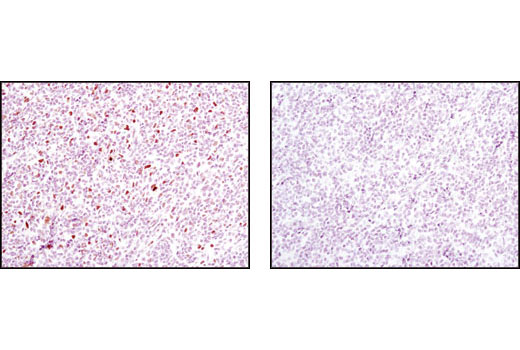 Immunohistochemical analysis of paraffin-embedded Non-Hodgkin's lymphoma using Phospho-Stat1 (Tyr701) (58D6) Rabbit mAb #9167 in the presence of control peptide (left) or Phospho-Stat1 (Tyr701) Blocking Peptide (right).