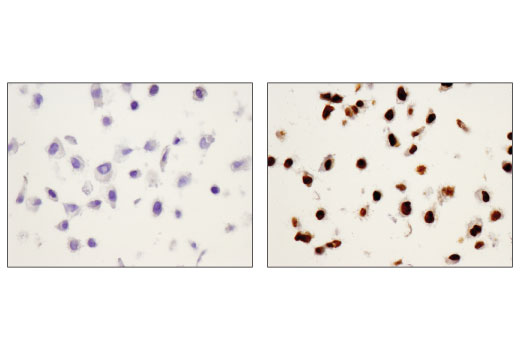Immunohistochemical analysis using Phospho-Stat1 (Tyr701) (58D6) Rabbit mAb on SignalSlide® HeLa -/+ IFNa IHC Controls #55861 (paraffin-embedded HeLa cell pellets, untreated (left) or treated with Human Interferon-α1 (hIFN-α1) #8927 (right)).