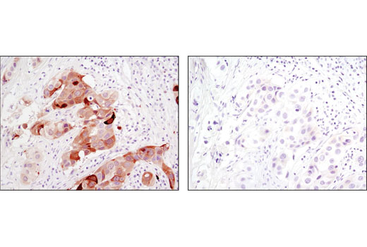 Immunohistochemical analysis of paraffin-embedded human breast carcinoma control (left) or λ phosphatase-treated (right) using Phospho-Stathmin (Ser38) (D19H10) Rabbit mAb.