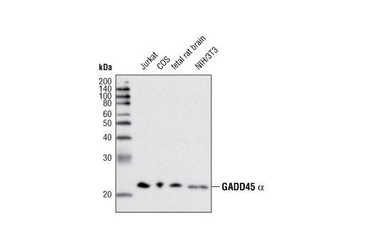 Western blot analysis of extracts from various cell lines and tissues using GADD45 alpha (D17E8) Rabbit mAb.