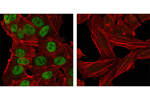 Confocal immunofluorescent analysis of NTERA-2 cells (left) and HeLa cells (right) using Nanog (1E6C4) Mouse mAb (green). Actin filaments have been labeled with DY-554 phalloidin (red).