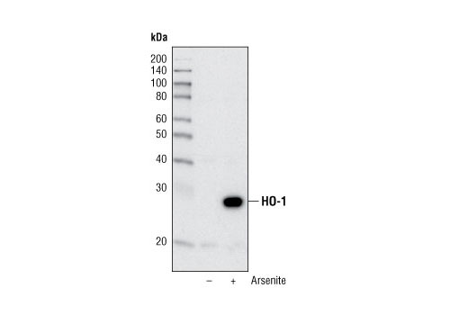 Polyclonal Antibody Negative Regulation of Leukocyte Migration - count 20