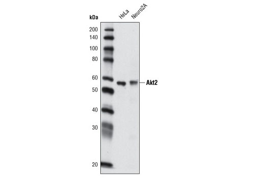 Western blot analysis of extracts from HeLa and Neuro2A cells using Akt2 (L79B2) Mouse mAb.