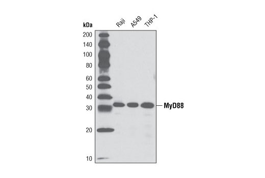 Western blot analysis of extracts from Raji, A549, and THP-1 cells using MyD88 (D80F5) Rabbit mAb.
