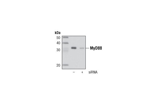 Western blot analysis of extracts from A549 cells, untransfected () or transfected with a MyD88 siRNA (+), using MyD88 (D80F5) Rabbit mAb.
