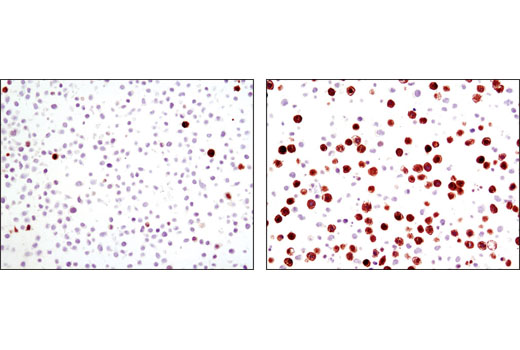 Immunohistochemical analysis of paraffin-embedded HT-29 cell pellets, control (left) or nocodazole-treated (right), using Phospho-TCTP (Ser46) Antibody.